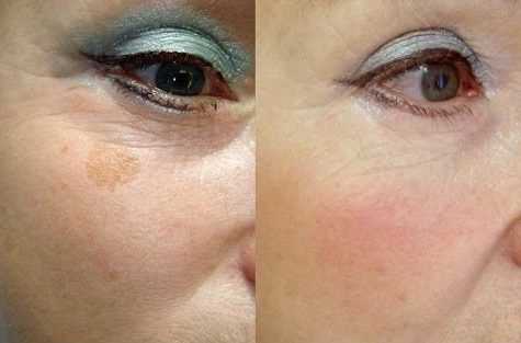 Крем для защиты кожи от пигментации